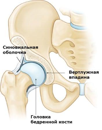 trochanterita doare articulația șoldului