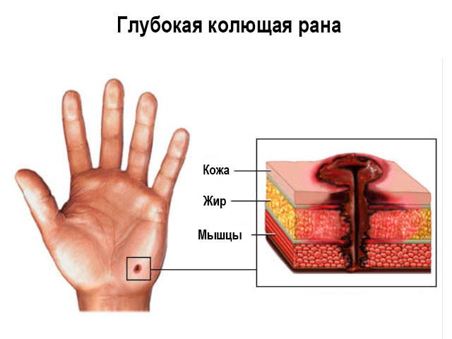 Какая рана заживает быстрее рваная или резаная