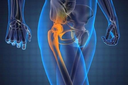 a bal csípőízület osteochondropathia kezelése)