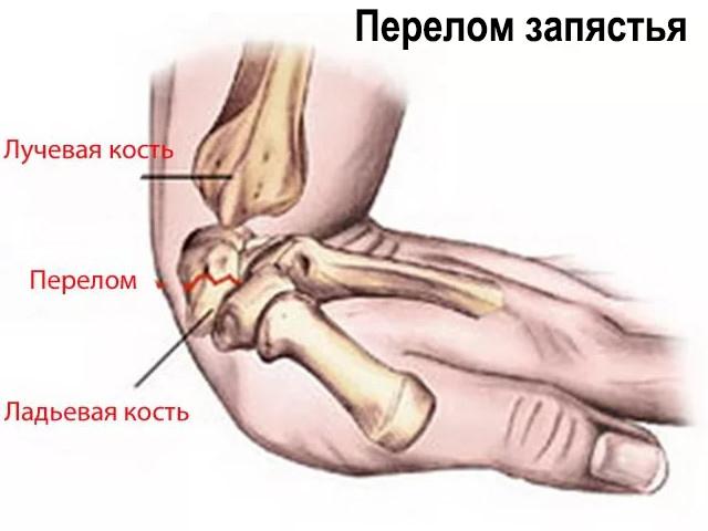 articulația degetului mijlociu doare când este îndoită frecarea cu artrita genunchiului