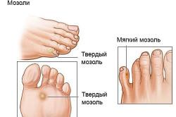 Что делать если появилось уплотнение на стопе ноги под кожей как шишка и болит